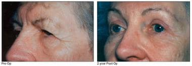 Left - Preoperative view, brow lift Right - Postop