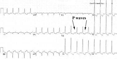 ECG shows slow monomorphic ventricular tachycardia