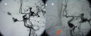 Panel A is an angiogram of caroticocavernous fistu