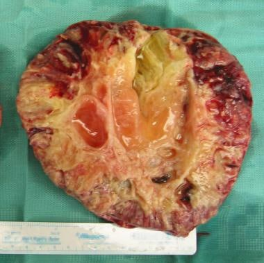 Cross-section of a clear cell carcinoma of the ova