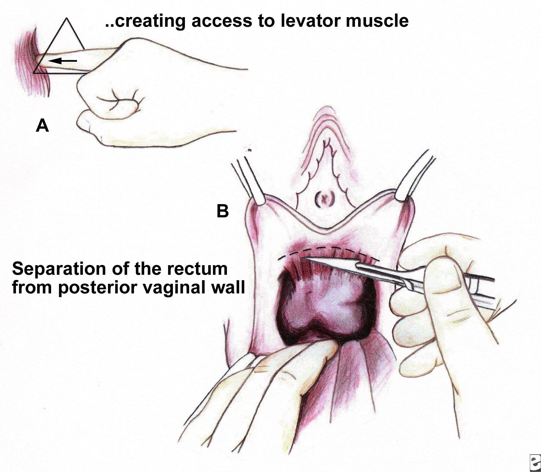 Symptomer på uterin prolaps bordel i Odense