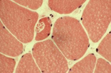 Hematoxylin and eosin stain. Note the splitting of