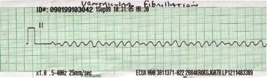 Rhythm strip showing ventricular fibrillation.
