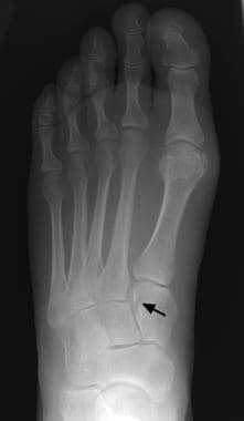 Fractures, foot. Subtle fracture of the first cune