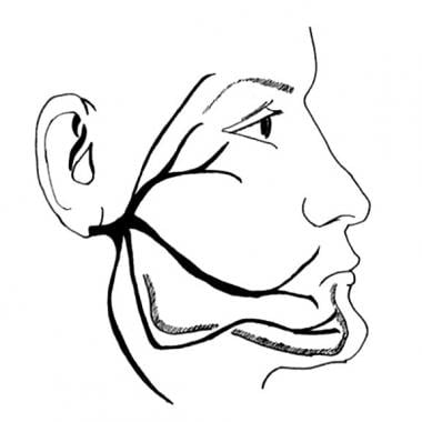 Course of the facial nerve.