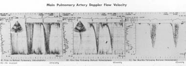 Doppler flow velocity recordings from the main pul