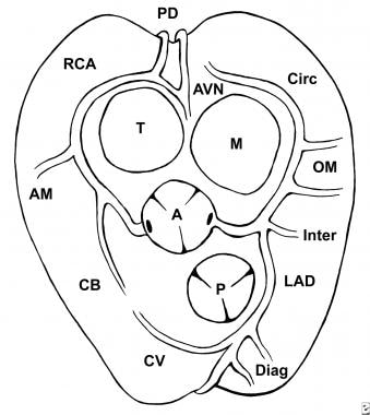 Normal anatomy of coronary arteries, viewed from a