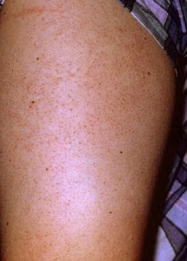 Keratosis pilaris occurs most commonly on the late