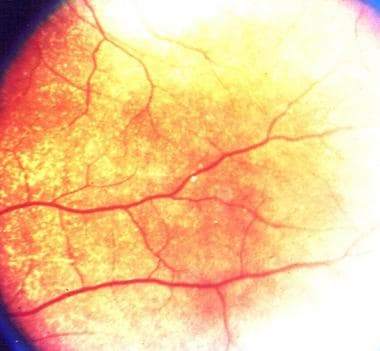 Retinal pearl in a patient with Hansen disease.