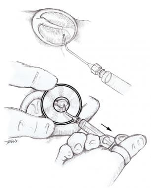 Illustration showing tympanocentesis with a needle