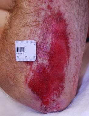Abrasion on the elbow.