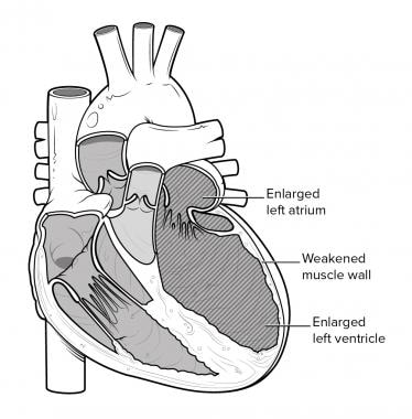 Dilated cardiomyopathy.