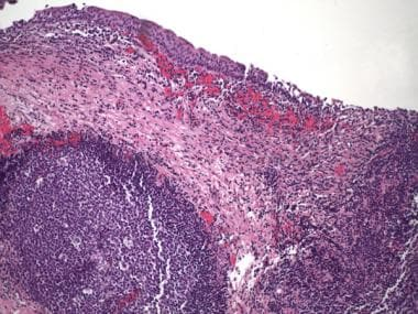 Follicular cystitis. Lymphoid aggregate with well-