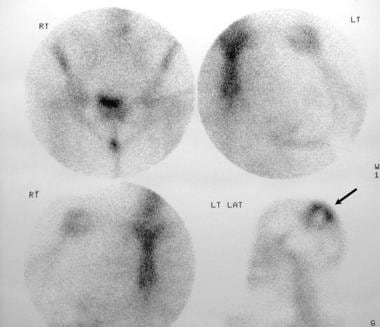 Radionuclide bone scans in a 28-year-old woman wit