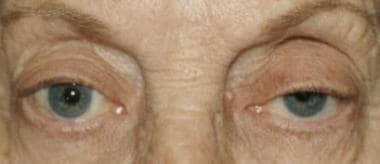 Left ptosis. Lid crease is absent on the left. The