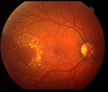 Moderate nonexudative age-related macular degenera