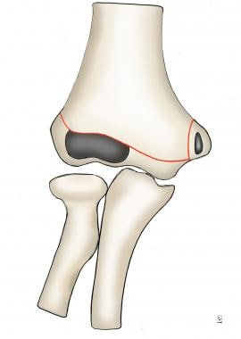 Diagram of intact distal humerus.