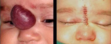 Plastic Surgery For Hemangioma Background Epidemiology