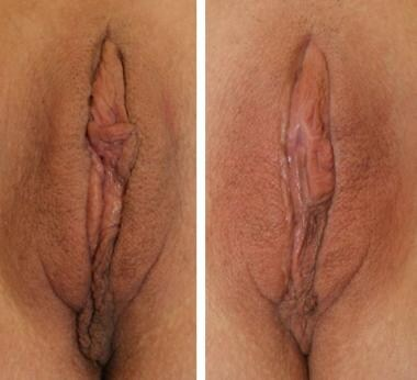 Labiaplasty results. Before (left) and 1 year afte