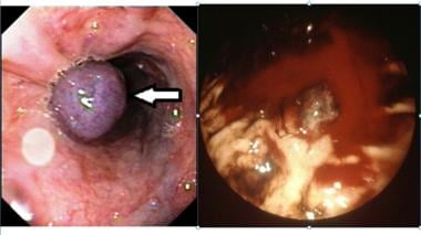 These two photos show band ligation of esophageal