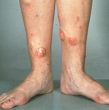 Tumorous lesions on the legs in a patient with dif