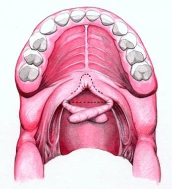 Schematic showing rotation of palatopharyngeal fla