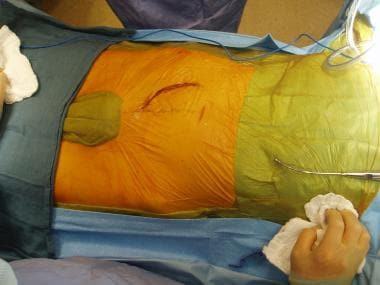 Retroperitoneal incision to access the right commo