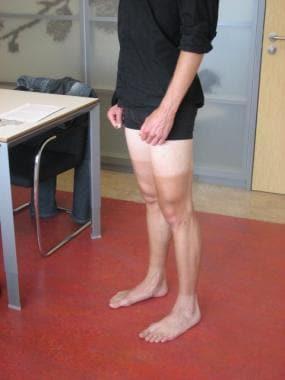 Patient preparation for knee examination.