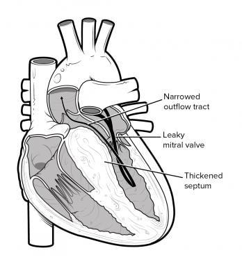 Анатомия сердечно сосудистой системы Гипертрофическая кардиомиопатия.  Анатомия сердечно сосудистой системы Анатомия сердечно сосудистой системы 12535tn