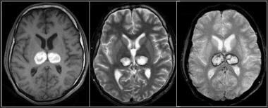 MR images show late subacute hemorrhage in both th