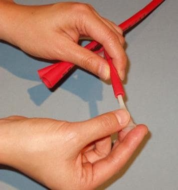 Plastic plug being inserted into lumen of balloon