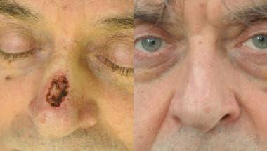 Full-thickness skin graft to nasal dorsum.