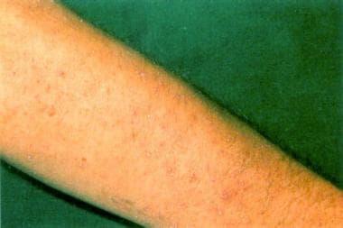 Hyperkeratotic lesions of the skin may involve aca