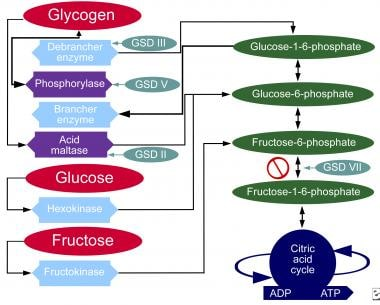 Glycogen storage disease, type II. Metabolic pathw