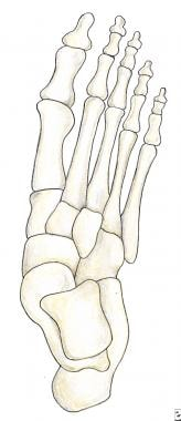 Preoperative anteroposterior view of foot prior to
