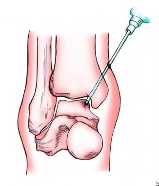 Osteochondral lesions of the talus. Illustration o