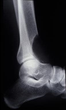 Giant cell tumor. Lateral radiograph of the same d