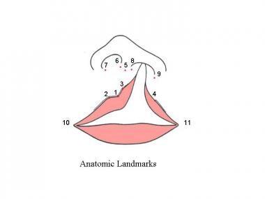 Figure illustrates important anatomic landmarks us