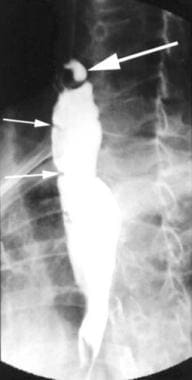 Upper gastrointestinal series showing upper esopha