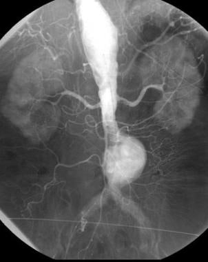 Arteriography demonstrates infrarenal abdominal ao
