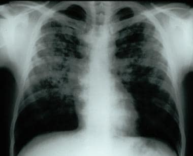 Frontal chest radiograph demonstrating bilateral r