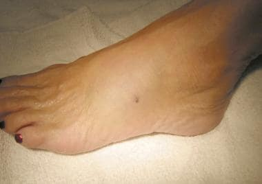 Typical stingray puncture wound on a foot, approxi