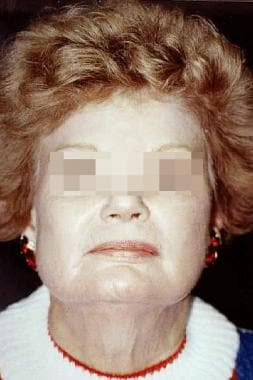 Female patient with advanced dermatoheliosis and s