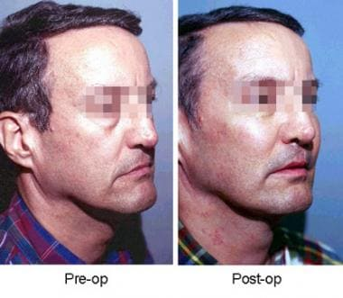 Side view of patient before and after insertion of