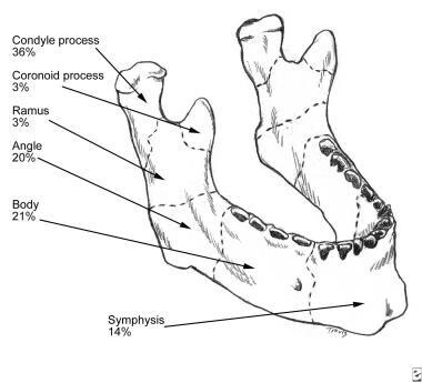 Mandibular fractures.