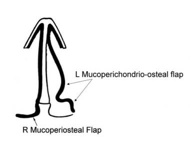 Continuous septal mucoperiosteal and nasal floor m