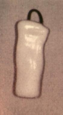Side view of a Montgomery laryngeal stent.