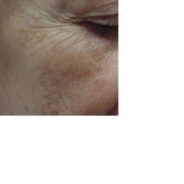 Facial pigmentation.