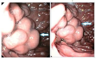 Fundal varices found during endoscopic examination