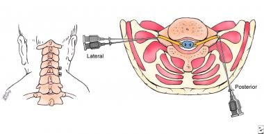 Paravertebral block technique (posterior approach)